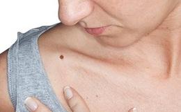 Nốt ruồi mới mọc và những nguy hiểm tiềm tàng mà có thể bạn chưa biết