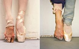Vũ công ballet, thiên nga mang đôi bàn chân của quỷ dữ
