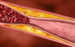 3 dấu hiệu của mỡ máu - căn bệnh giết người âm thầm: Dù gầy hay béo đều phải cảnh giác