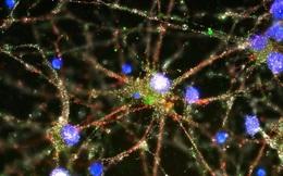 """Mạng lưới thần kinh nhân tạo, một bước tiến """"đáng sợ"""" mới của trí thông minh nhân tạo"""
