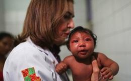 Không phải Zika mà hóa chất Pyriproxyfen gây teo não?