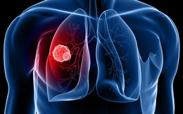 Những dấu hiệu cảnh báo bạn đang bị ung thư phổi