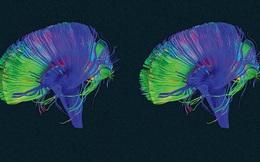 Não bộ của bạn có nút Delete, đây là cách để sử dụng nó hiệu quả