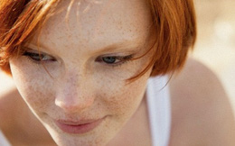 Những người tóc nâu đỏ dễ mắc ung thư da, ngay cả khi không tiếp xúc với ánh sáng mặt trời