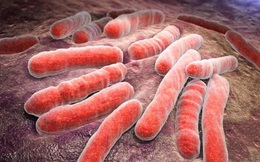 Gần 1/4 dân số thế giới có nguy cơ mắc phải căn bệnh cực kỳ đáng sợ này