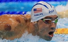 Phải chăng đây là bí quyết chiến thắng của các VĐV Olympics ?