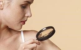 Cách tự kiểm tra ung thư da trong 5 phút