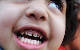 Các bậc phụ huynh đừng để mất con vì nhiễm độc chì
