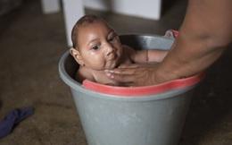 Việt Nam có thể ghi nhận các trường hợp mắc vi rút Zika mới