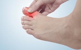 3 dấu hiệu ở chân mà bạn không nên chủ quan bỏ qua vì có thể đó là bệnh nguy hiểm
