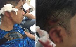 Đi cùng bạn gái đến Trung tâm California Fitness, nam thanh niên bị nhóm người trong phòng tập đánh rách đầu