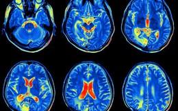 Làm thế nào để nhìn vào bên trong cơ thể? Chụp hình y khoa đã và sẽ mở ra những kỷ nguyên y học mới