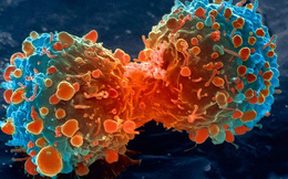 Nghiên cứu mới: Không phải do thực phẩm bẩn hay môi trường ô nhiễm, nguyên nhân hàng đầu gây ung thư là do lỗi sao chép DNA