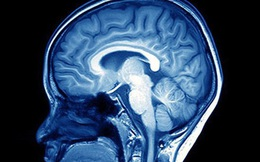 Phát hiện ra 40 gen mới liên quan đến trí thông minh