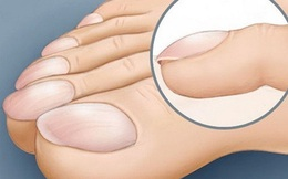 Bàn chân có dấu hiệu này nếu xem nhẹ bệnh trở nặng lúc nào không hay!