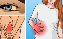 6 dấu hiệu cảnh báo gan của bạn có thể đang... bị hỏng