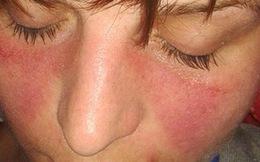 7 vấn đề về da bạn không bao giờ được lờ đi nếu không sẽ càng nghiêm trọng