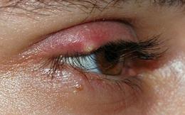 Biểu hiện nhẹ ở mắt, tổn thương nặng trong người: Kiểm tra ngay!