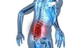 [Video] Bí quyết giữ sống lưng thẳng, phòng tránh còng lưng, đau cột sống