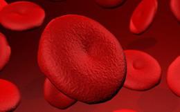 Đi tiểu ra máu là dấu hiệu của nhiều bệnh trọng: Chớ coi thường!