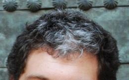 Vì sao có những người còn rất trẻ nhưng tóc đã trắng hết đầu?