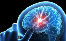 Đau đầu có thể là dấu hiệu căn bệnh gây tử vong nhanh đe doạ nhiều người trẻ