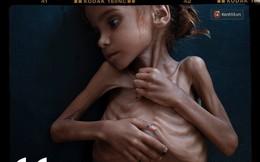 """Amal Hussain: """"Biểu tượng nạn đói Yemen"""" và sứ mệnh hy sinh cho cả dân tộc trên vai những đứa trẻ"""