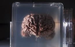 Startup nhận 1 triệu USD góp vốn để lưu liệu từ não bộ con người nhằm hồi sinh chúng ta trong tương lai