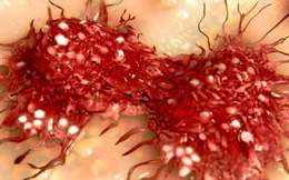 Những nguyên nhân hàng đầu gây nên ung thư: Hãy nhận biết để phòng tránh