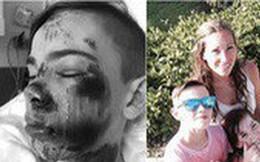 Bà mẹ không ngại ngần chia sẻ hình ảnh khuôn mặt đáng sợ của con trai vì không đội mũ bảo hiểm xe đạp để cảnh báo phụ huynh