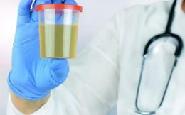 10 bí mật về nước tiểu liên quan đến thận, sức khỏe: Ai cũng nên biết rõ để phòng bệnh tốt