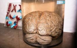 Các nhà khoa học nuôi được não nhân tạo 6 tháng tuổi, lần đầu tiên phát ra sóng não giống trẻ sơ sinh