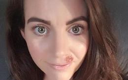 Người phụ nữ 32 tuổi phát hiện mình mắc bệnh ung thư da thông qua dấu hiệu mà bất kỳ cô gái nào cũng có thể gặp phải