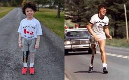 Tuổi nhỏ làm việc lớn: Cậu bé 7 tuổi hóa trang thành thần tượng Terry Fox, Halloween không xin kẹo mà đi quyên tiền cho nghiên cứu ung thư