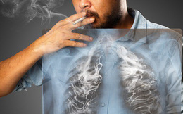 """Mắc ung thư phổi vì hút thuốc quá sớm, chàng trai 20 tuổi viết tâm thư xin lỗi gia đình: Là con một nhưng thích """"lấy số"""" trước bạn bè nên đành nhận án tử"""