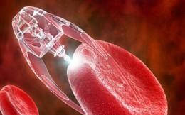 Tiêu diệt tế bào ung thư bằng phân tử nano từ lá trà - Hy vọng mới cho những người đang điều trị ung thư phổi