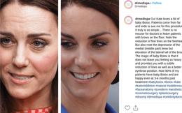 Cung điện hoàng gia lên tiếng chính thức trước nghi vấn Công nương Kate can thiệp thẩm mỹ với khuôn mặt bất thường gây tranh cãi