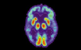 Trí tuệ nhân tạo phát hiện Alzheimer trong các bản chụp cắt lớp não sớm 6 năm so với chẩn đoán