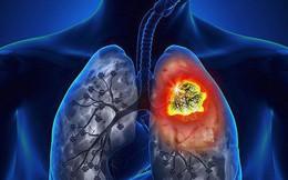Cẩn thận 10 triệu chứng là điềm báo tiền ung thư mà nhiều người còn mơ hồ và không nhận ra