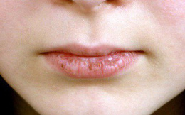 6 vấn đề sức khỏe ở vùng răng miệng mà không phải ai cũng biết, đặc biệt là cái số 3