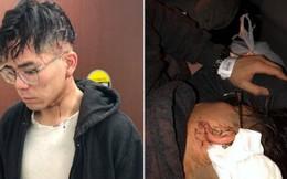 Nhân viên tố bị chủ nhà hàng Việt Nam tại Mỹ đánh đập tàn nhẫn vì xin nghỉ sau 2 năm 'làm việc quá sức'
