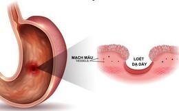 7 triệu chứng không đau có thể là dấu hiệu sớm của ung thư: Khám sớm có thể cứu sống bạn