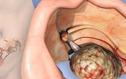 Bác sĩ mắt đỏ hoe giải thích cho cô gái trẻ phát hiện mắc ung thư khi chưa kịp lập gia đình