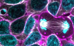 Đột phá: Các nhà khoa học lần đầu xây dựng thành công mô hình nguyên phân của tế bào gốc