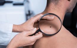 Ung thư da dễ xuất hiện ở 6 vùng này trước tiên: Hãy cẩn thận đi khám nếu thấy bất thường