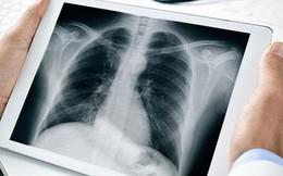 Việt Nam xây dựng thành công phần mềm đọc bệnh qua ảnh X quang: Hiệu quả cực cao, tạo đột phá mới trong ngành y tế