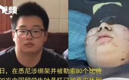 Du học sinh Trung Quốc bị bắt cóc ở Úc, gia đình nạn nhân khổ sở vì bị bắt trả tiền chuộc bằng 80 Bitcoin
