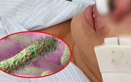 Cảnh báo vi khuẩn ăn thịt người tấn công trong mùa mưa bão, bệnh viện Bạch Mai đã có 4 ca tử vong