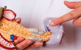 Cảnh báo bệnh ung thư ác tính nhất đường tiêu hoá, chỉ 4% người mắc sống sót được 5 năm