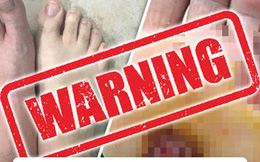"""Vì thói quen đi chân trần trong phòng tắm mà người đàn ông này bị """"vi khuẩn ăn thịt người"""" tấn công"""